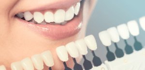 What to Know About Teeth Whitening -Intercare Health Hub